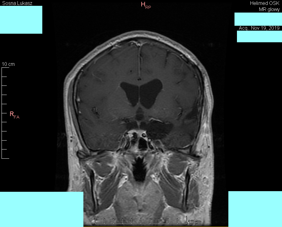 MRI of the head